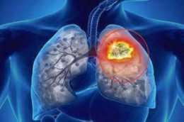 假如小女孩得肺癌?揚州11歲女孩得肺癌,誘發因素有這些
