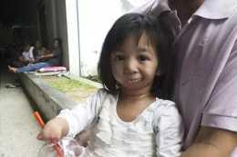 小女孩一出生就沒有手腳,沒有嘴巴,3歲時才吃到人生中第一口飯