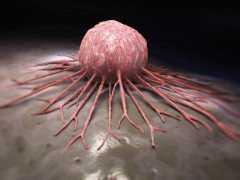 """癌症是""""不治之症"""",治好的都是被誤診了?得了癌症要怎麼辦?"""