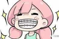 牙齒矯正會痛嗎?如何躲避那些疼痛期?